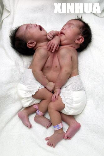 罕见胸腹连体女婴在沪成功分离